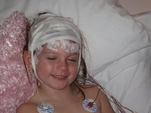 The 6 year Old Girl Who Had Half Of Her Brain Removed