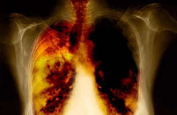 10 Most Deadly Types Of Cancer - Lung Cancer