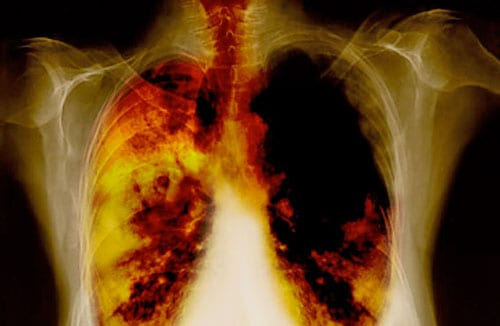 Top 10 Most Lethal Diseases - Lung Cancer