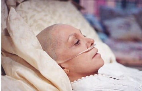 10 Most Common Types Of Cancer In The USA