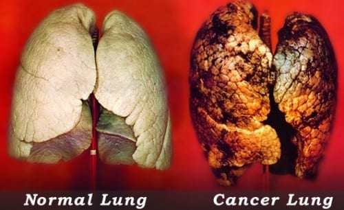 Lung Cancer - most common cancer in USA