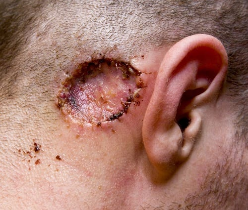 Skin Cancer - most common cancer in USA