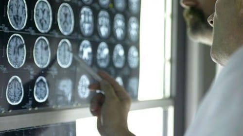 10 Horrifying Medical Mistakes - Misdiagnosis