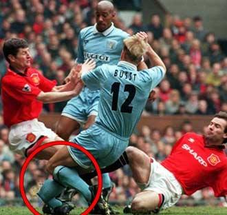 worst football injury