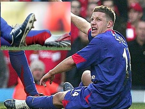 Worst Football Injuries - Alan Smith
