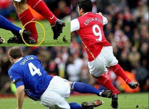 Worst Football Injuries - Eduardo da Silva