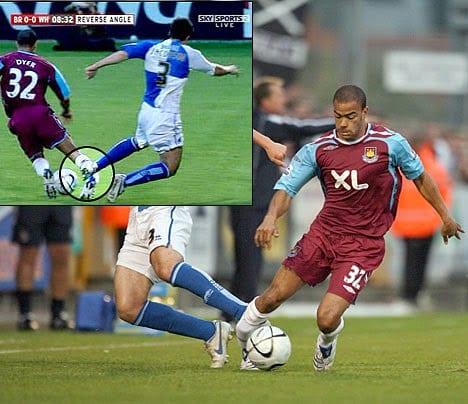 Worst Football Injuries - Kieron Dyer