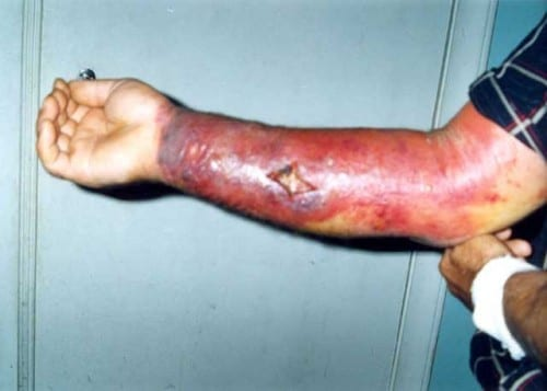 Most Dangerous Bacterial Infections - Anthrax