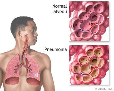 Most Dangerous Bacterial Infections - Pneumococcal Pneumonia