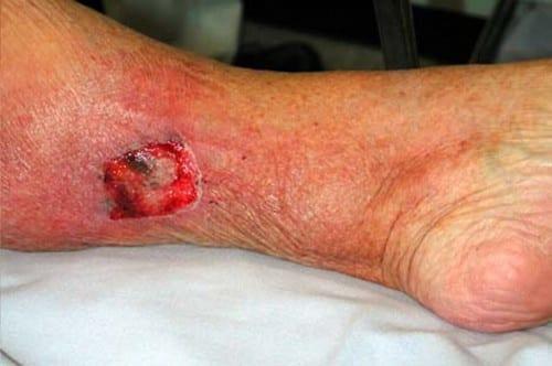 Most Dangerous Bacterial Infections - Tetanus