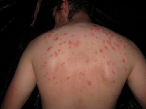 Most Dangerous Bacterial Infections - Typhoid